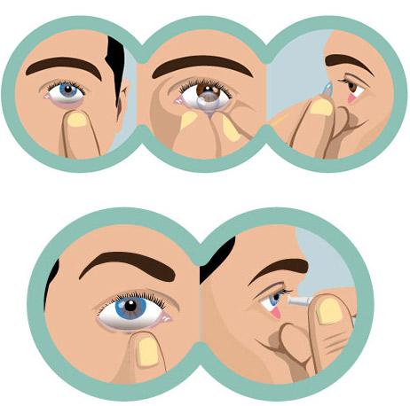 c94e2fa416876 Com o auxílio de uma ventosa retire a lente. OBS  há outros métodos para  remoção das lentes. Caso não se adapte a este, seu médico oftalmologista  poderá ...